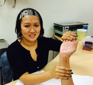 certified hand therapy for distal radius fracture