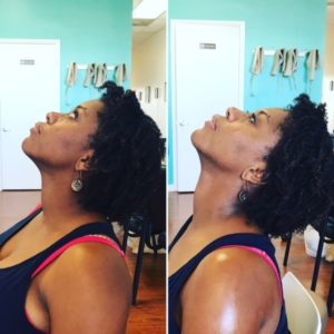 therapy for neck and shoulder miami