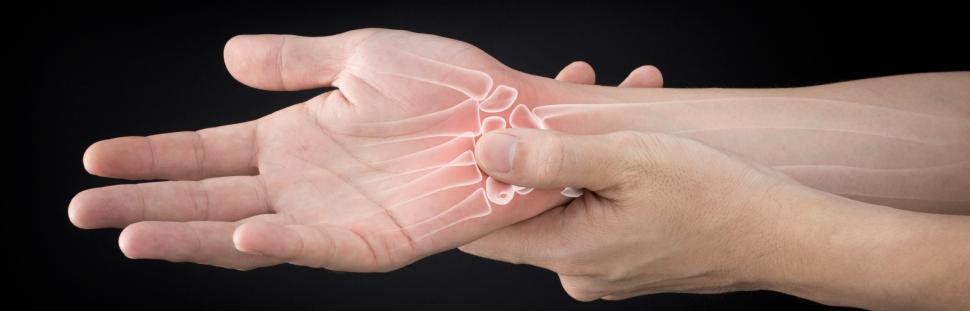 hand therapist doral miami